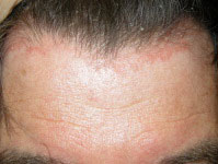 Yeast infection facial rash was consistently