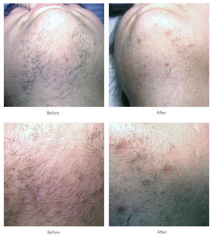 Nono Hair Removal Before And After